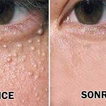 Göz Altındaki Yağ Bezeleri Nasıl Geçer?